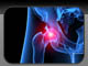 Introduction to Hip Pain
