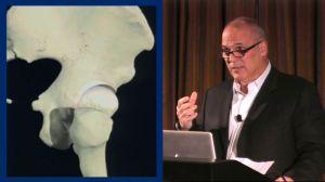 Wilk PTI Online: Pathoanatomy & Compensatory Soft Tissue Differential Diagnosis